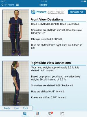 Chiropractic Urbandale IA Posture